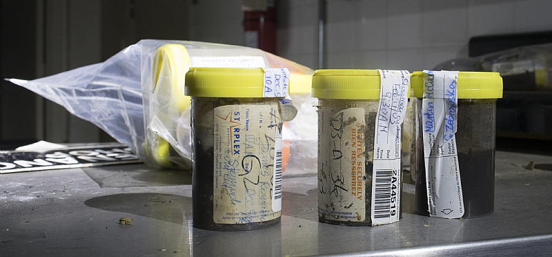 human tissue samples in autopsy room